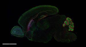FL brain