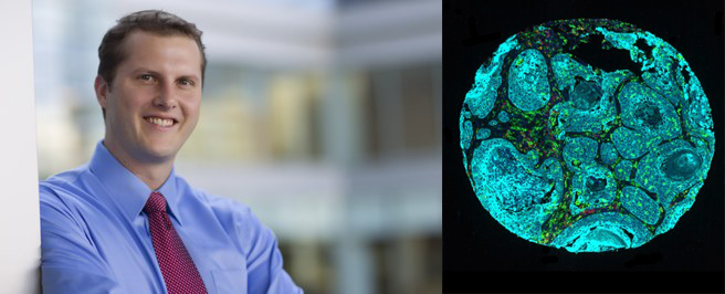 Chad Pecot, MD, and a cancer cell