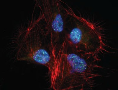 """Viral control center: KSHV commandeers cell nucleus"" by Dirk Dittmer, PhD"